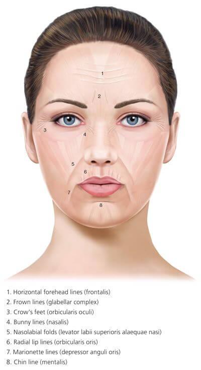 56bda8eed09a136edcf0d32dfbe08f82–botox-training-botulinum-toxin