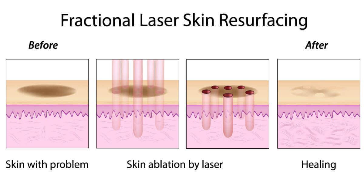 fractional co2 laser phuket