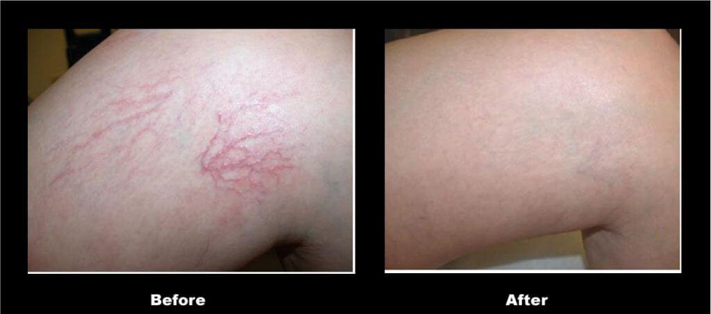 laser vein removal phuket