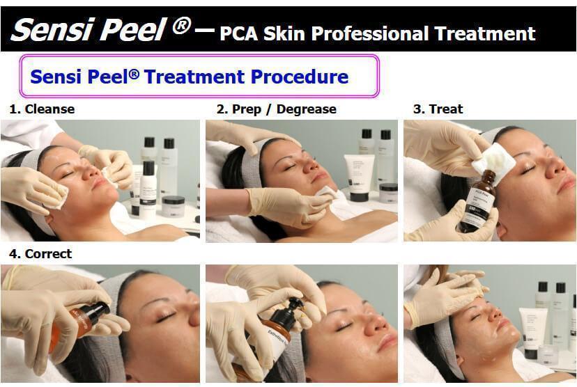 sensi peel treatment