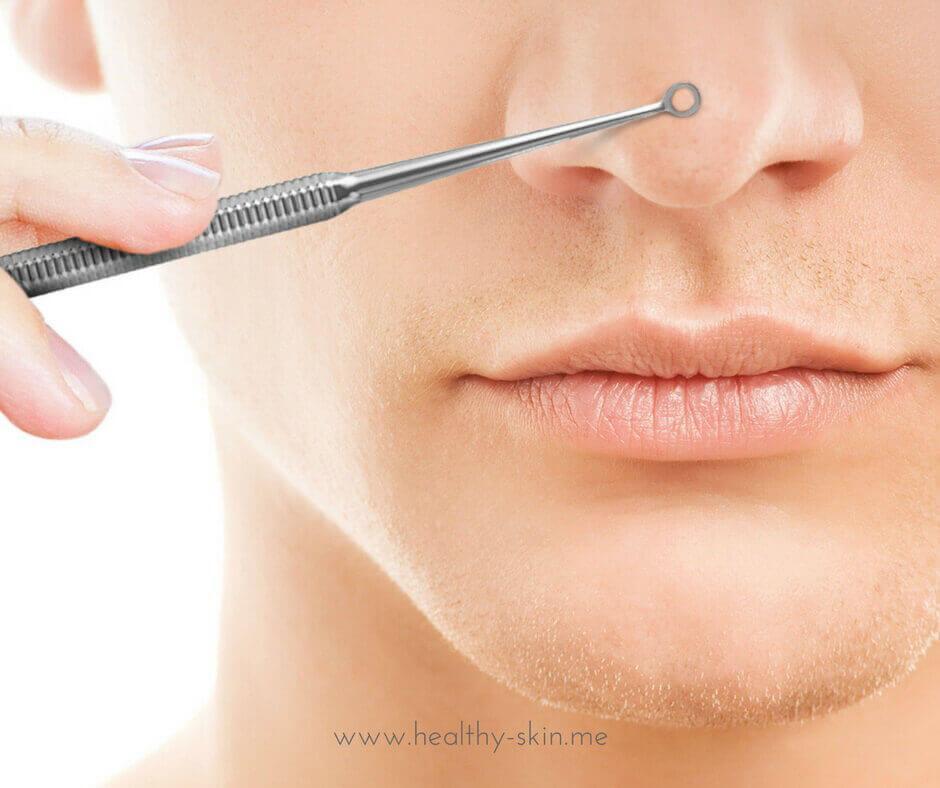 blemishes extraction