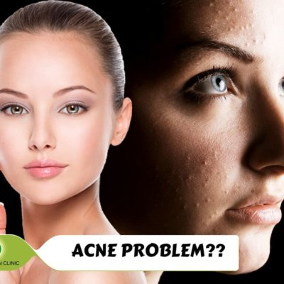 Dermatologist Answers: Effective Acne Scar Treatments