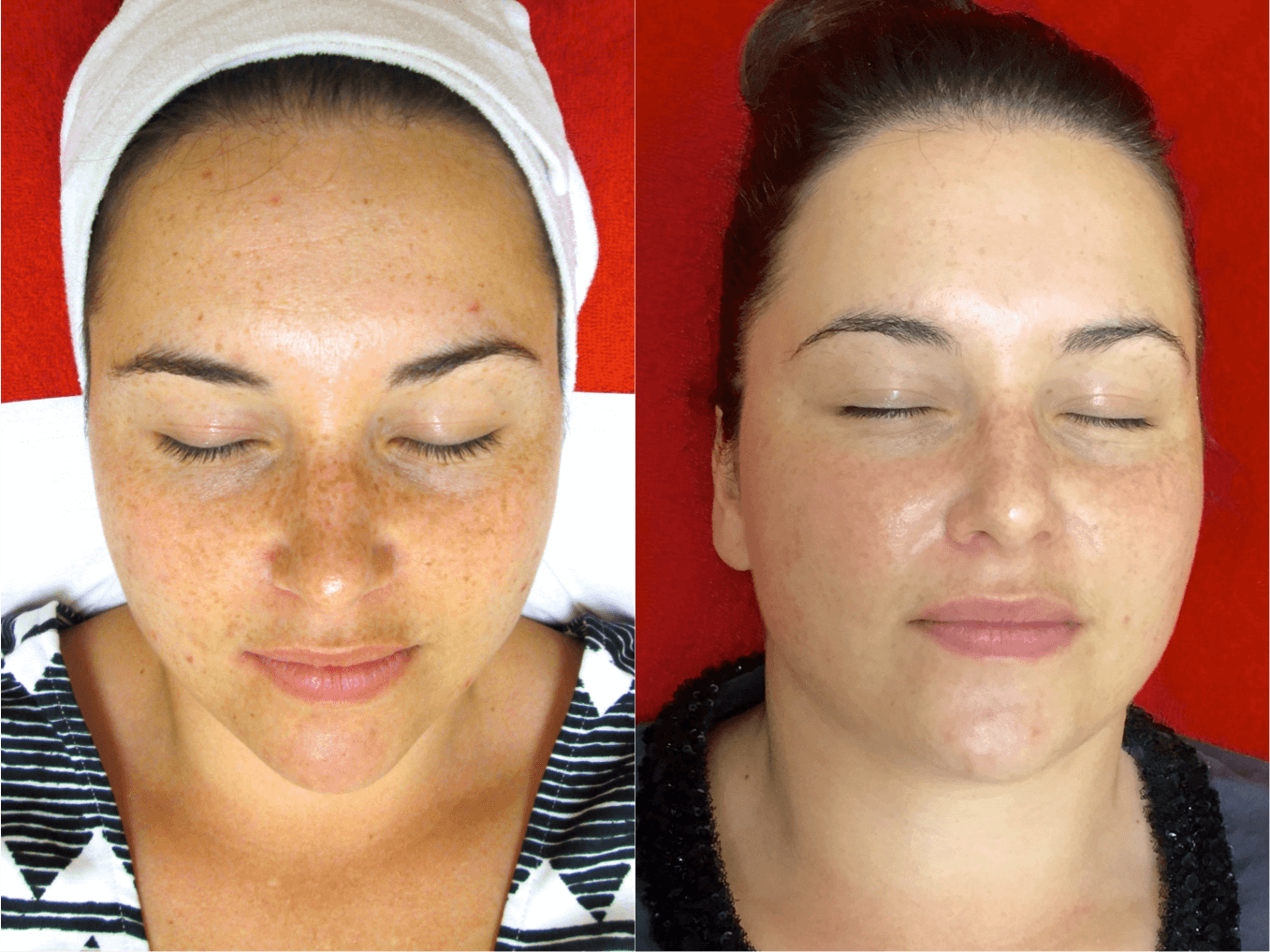 skin rej before and after