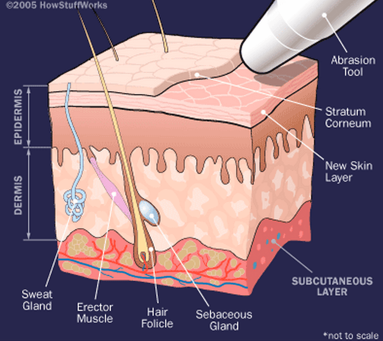 Dermabrasion vs. Microdermabrasion: What's The Difference?