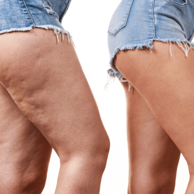 Four Ways To Prevent Cellulite Development
