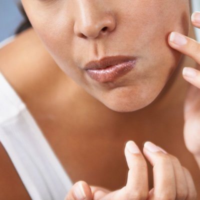 The Difference Between Blackheads and Whiteheads
