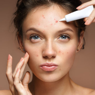 Skin Benefits of Salicylic Acid