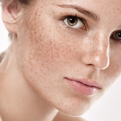 Revealing Facts about Hyperpigmentation