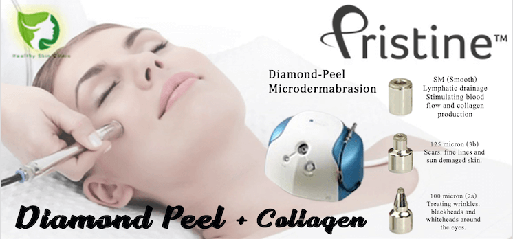 Diamond Peel Collagen Banner