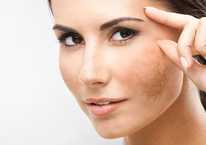 woman the are 40 have melasma