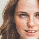 Skin Spots: Age Spots, Moles, Melasma, and Freckles Differences