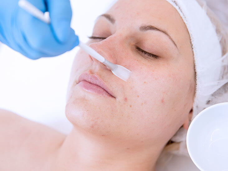 chemical peels to prevent age spots