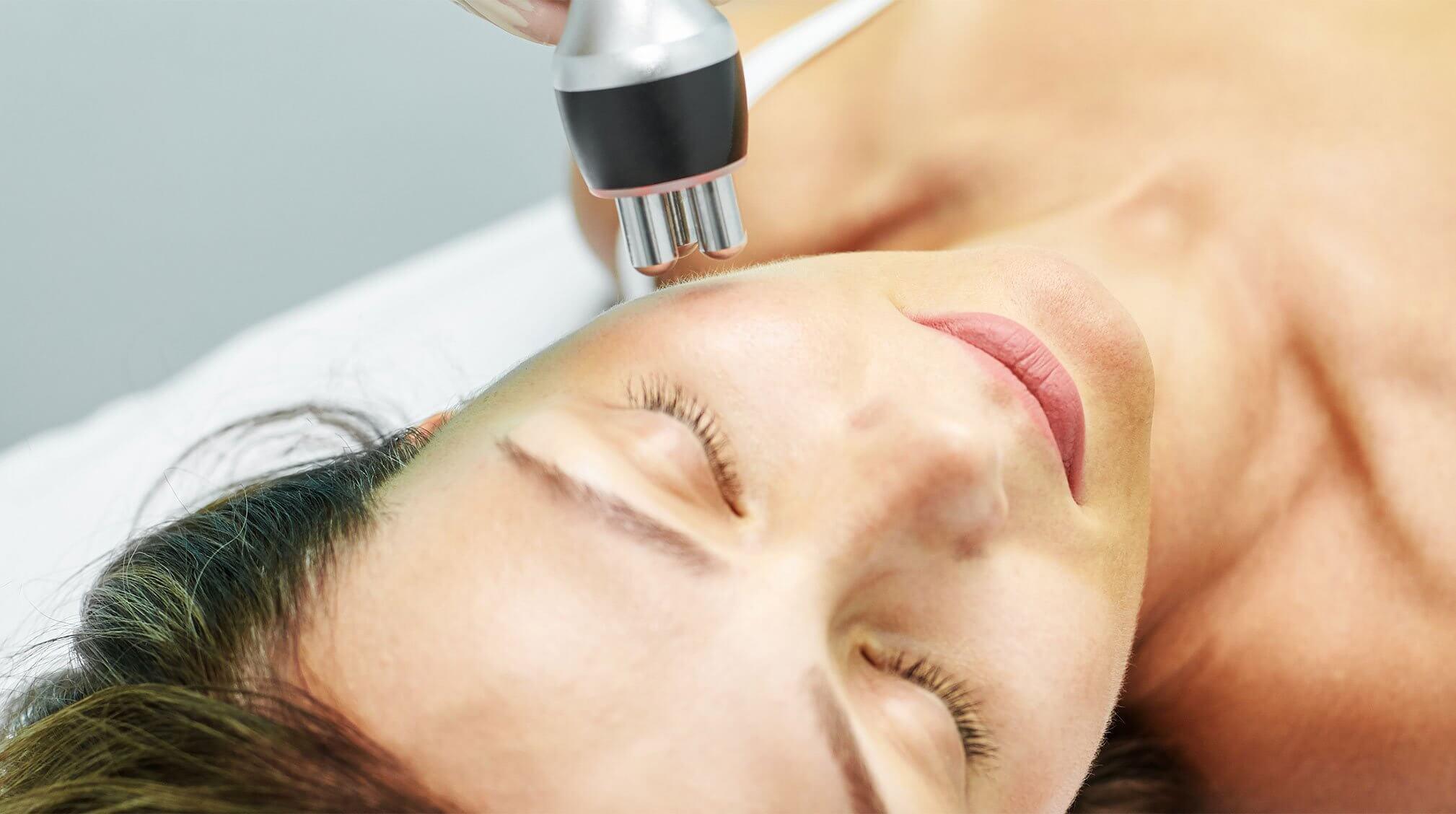 laser treatment to prevent age spots